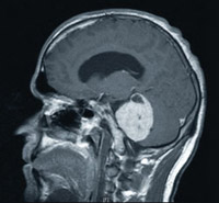 MRI - Base of Brain Tumour